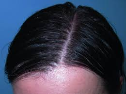 alopecia hair loss skin disorders merck manuals consumer version