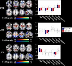 deconstructing psychosis and misperception symptoms in parkinson u0027s