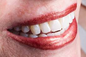 faq u0027s about teeth whitening the simple tooth vu le dds