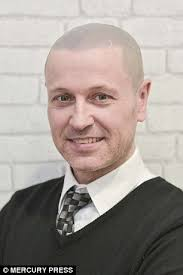 paddy mcguinness hair transplant father who spent 90 minutes a day disguising a bald patch now has