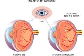 Symtoms Of Blindness Diabetic Retinopathy Health Navigator Nz