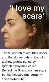 Face Stretch Meme - 25 best memes about scars scars memes