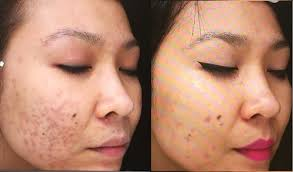 light therapy for acne scars isolaze for acne csc dermatology