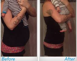 postpartum belly wrap shrinkx belly postpartum belly wrap waist band upspring baby