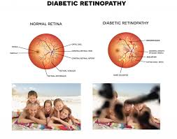 Diabetic Blindness Understanding Diabetic Retinopathy