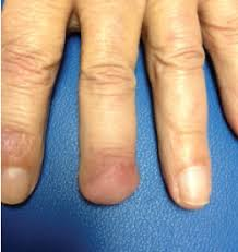 what is causing these nail changes the dermatologist