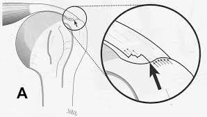 arthroscopic shoulder surgery for the treatment of rotator cuff