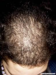 bandage hair shaped pattern baldness alopecia primary care dermatology society uk