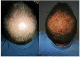 new hair growth discoveries hair loss alopecia or thinning hair has an effective natural solution