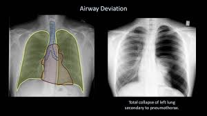 how to interpret a chest x lesson 4 airways bones and