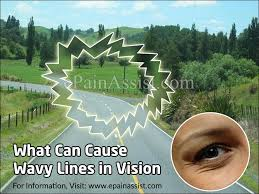 What Can Cause Temporary Blindness What Can Cause Wavy Lines In Vision U0026 How Is It Treated