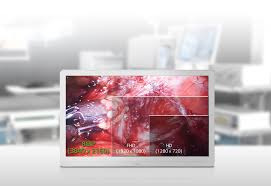 lg 8mp surgical monitor