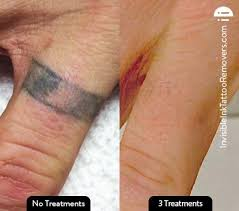 25 gorgeous laser removal ideas on pinterest laser