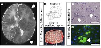 Brain Mapping Intersection Of Diverse Neuronal Genomes And Neuropsychiatric