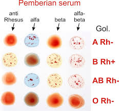 Serum Tes Golongan Darah praktikum golongan darah abo dan rhesus praktikum biologi