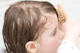 toddler hair toddler dandruff why does it happen and how to treat it