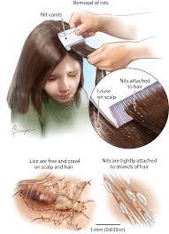 head lice dermatology jama the jama network
