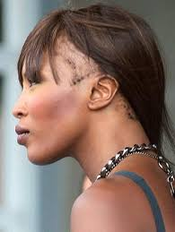 hairr styles for woman with alopica story of naomi cbell s hair loss traction alopecia in black women