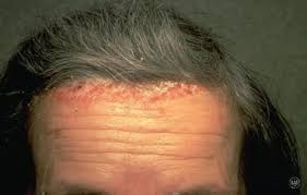 light treatment for scalp psoriasis scalp psoriasis american academy of dermatology
