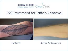 r20 laser tattoo removal technique youtube