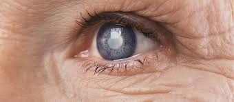 what causes eyes to be sensitive to light sensitivity to light symptoms causes treatment options buoy