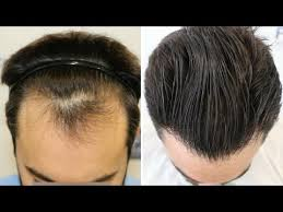 how thick is 1000 hair graft fue hair transplant 1778 grafts in nw class ll by dr couto