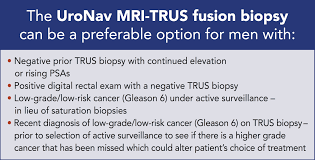 mri guided biopsy breast changing the game in prostate cancer detection