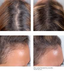Vitamin Deficiency And Hair Loss Amazon Com Women Advanced Hair Growth Supplement 2 800mg