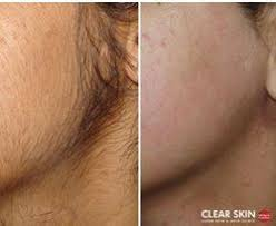 brazilian laser hair removal pictures laser hair removal services in pune