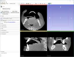 3d Medical Software 3d Printing In Medicine Embodi3d Com