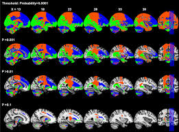 anatomical and functional organization of the human substantia