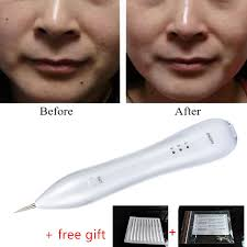 100 laser tattoo removal dark skin tattoo removal dr david