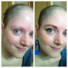 hair growth after chemo pictures vita blog laura price on hair regrowth