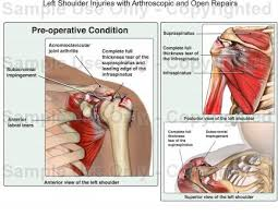 Human Shoulder Diagram Left Shoulder Injuries With Arthroscopic And Open Repairs