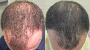 Hair Loss Cure For Women Prp Hair Loss Before After Best Hair Loss 2017