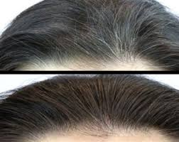 how to blend in grey hair al shaafi magic fast growth hair oilspecial blend for damaged