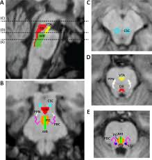 functional connectivity disturbances of the ascending reticular