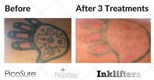 laser tattoo removal gallery picosure inklifters