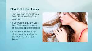 what causes hair loss in women over 50 what can cause hair loss in women youtube