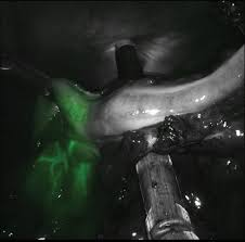 indocyanine green fluorescence imaging in colorectal surgery