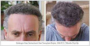 hair transplant month by month pictures 3186 fut hair transplant patient repair result hattingen hair