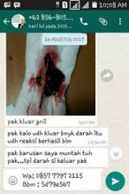 Aborsi Klinik Ntt Obat Aborsi Di Ntb Nusa Tenggara Barat Cytotec Asli 085777972115