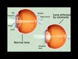 Blindness After Cataract Surgery Cataract Surgery Complications Youtube