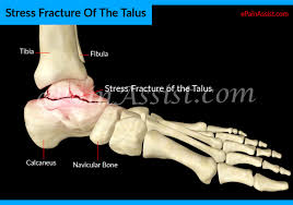 Talar Coalition Stress Fracture Of The Talus Causes Symptoms Treatment Surgery