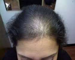 symptoms causes and cure of hair falling in homeopathy