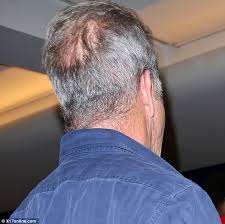 hairstyles for hiding a bald spot mel gibson displays thinning hair and bald spot as he jets out of