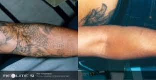 laser tattoo removal laser skin clinic