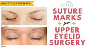 the healing process of eyelid surgery and how suture marks