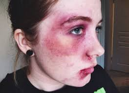 black eye bruising makeup makeup morgue pinterest black eyed