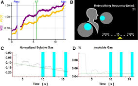 validation of noninvasive measurement of cardiac output using